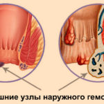 Лечение острого геморроя: методы, препараты
