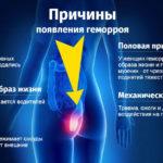 Образ жизни и факторы риска при геморроидальных заболеваниях
